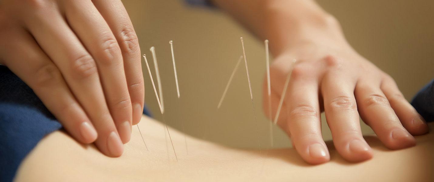 medicina alternativa acupuntura